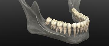 Fracture de la mandibule