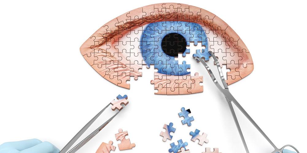 Chirurgie réfractive : la preuve de délivrance d'information
