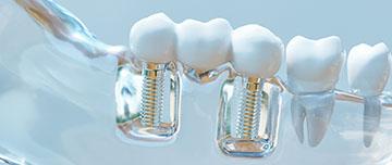 Responsabilité en implantologie dentaire