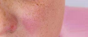 Pour une photographie respectueuse des patients en dermatologie
